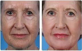Perle bleue Active Retention Age – pour le rajeunissement - effets secondaires – France – pas cher